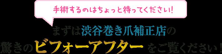 まずは渋谷巻き爪補正店の驚きのビフォーアフターをご覧ください