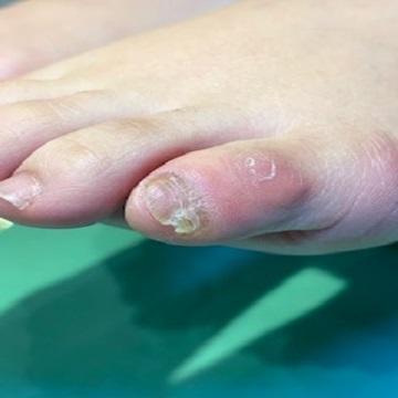 違和感 小指 足 の